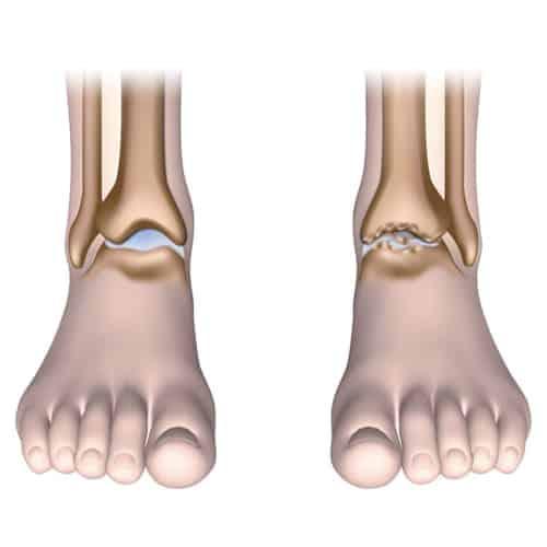 arthrose cheville enflee arthrose cheville exercices arthrose cheville traitement docteur marc elkaim chirurgien orthopedique chirurgien de la cheville paris 9