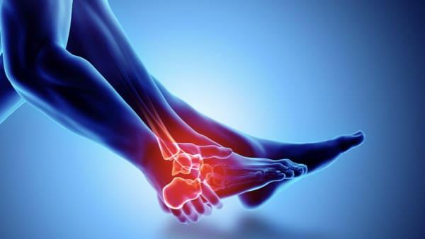 arthrose cheville enflee arthrose cheville exercices arthrose cheville traitement docteur marc elkaim chirurgien orthopedique chirurgien de la cheville paris
