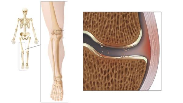 arthrose du genou symptome arthrose genoux exercices arthrose genou que faire docteur marc elkaim chirurgien orthopedique chirurgien genou paris