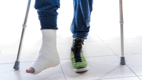 arthrose pied traitement arthrose pied radio arthrose pied que faire arthrose sous le pied docteur marc elkaim chirurgien orthopedique chirurgien du pied paris 9
