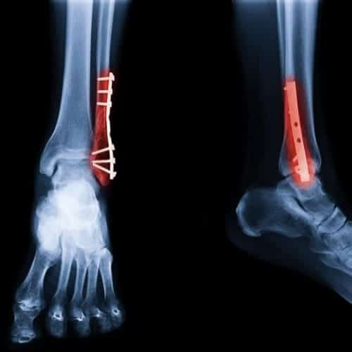 fracture cheville operation osteosynthese chevilledouleur fracture cheville reeducation docteur marc elkaim chirurgien orthopedique chirurgien de la cheville paris