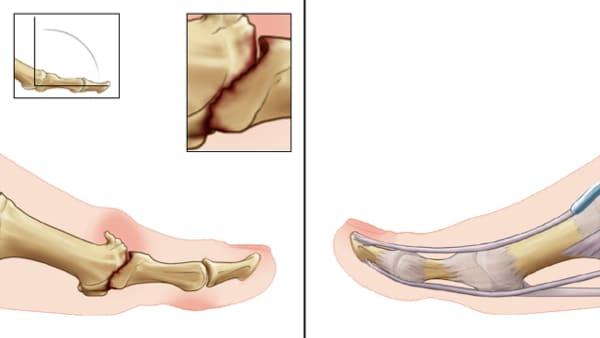 hallux rigidus exercices hallux rigidus symptomes hallux rigidus et sport docteur marc elkaim chirurgien orthopedique chirurgien du pied paris