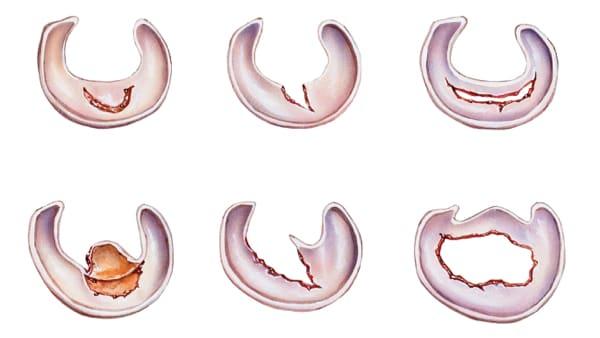 lesion meniscale en anse de seau lesion meniscale grade 2 traitement lesion du menisque interne docteur marc elkaim chirurgien orthopedique chirurgien genou paris