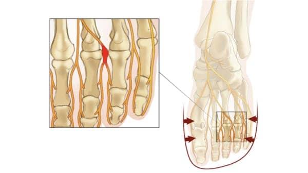 nevrome de morton diagnostic nevrome de morton irm nevrome de morton symptomes docteur marc elkaim chirurgien orthopedique chirurgien du pied paris