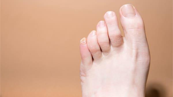 orteil en griffe operation orteil en griffeconvalescence orteil en marteau que faire docteur marc elkaim chirurgien orthopedique chirurgien du pied paris