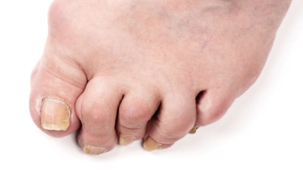 orteil en griffe photos orteils en griffe cause neurologique orteil en marteau photo docteur marc elkaim chirurgien orthopedique chirurgien du pied paris 9