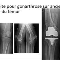 prothese totale genou prothese de genou reeducation totale docteur marc elkaim chirurgien genou paris chirurgie genou clinique drouot 1