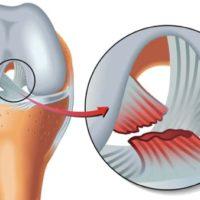 rupture ligament croise antérieur arret de travail rupture ligament croise anterieur genou rupture lcairm docteur marc elkaim chirurgien orthopedique chirurgien genou paris