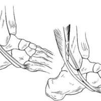tendinopathie des fibulaires tendinite des fibulaires tendonsfibulairescheville docteur marc elkaim chirurgien orthopedique chirurgien de la cheville paris