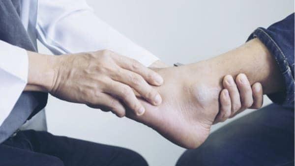 tendinopathie des fibulaires tendinite des fibulaires tendonsfibulairescheville docteur marc elkaim chirurgien orthopedique chirurgien de la cheville paris 9
