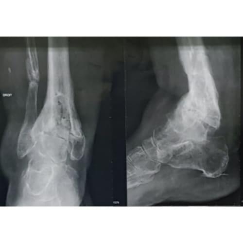 arthrodese cheville arthrodese cheville convalescence arthrodese cheville technique operatoire docteur marc elkaim chirurgien orthopedique chirurgie de la cheville paris 9