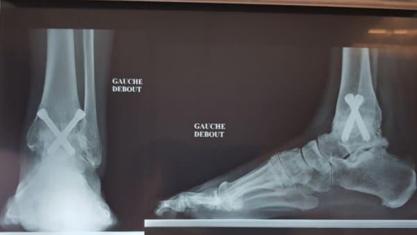 arthrodese de la cheville arthrodese cheville convalescence arthrodese cheville technique operatoire docteur marc elkaim chirurgien orthopedique chirurgie de la cheville paris 9
