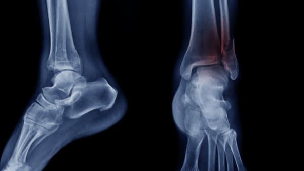 fracture cheville cassee fracture cheville radio fracture cheville malleole externe fracture bimalleolaire docteur marc elkaim chirurgien orthopedique chirurgien de la cheville paris 9