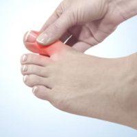 hallux rigidus exercices hallux rigidus symptomes hallux rigidus et sport docteur marc elkaim chirurgien orthopedique chirurgien du pied paris 9