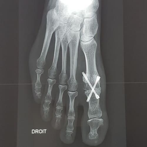 hallux rigidus radio hallux rigidus traitement hallux rigidus operation docteur marc elkaim chirurgien orthopedique chirurgien du pied paris 9